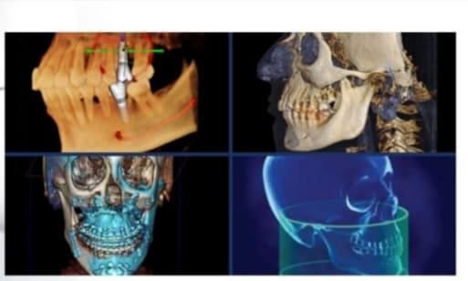 3D Volumetrik Dental Tomografi ile tanı